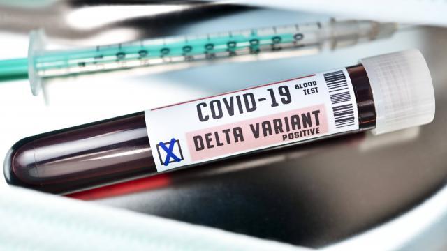 Bilim Kurulu Üyesi Kayıpmaz: Delta Plustan korunmanın yolu aşı
