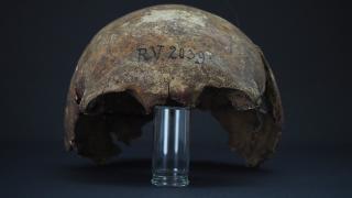 Vebanın bilinen en eski kurbanı: 5 bin 300 yıl önce yaşadı