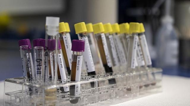 Hepatit B görülme sıklığı 100 binde 1in altına düştü