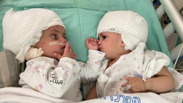 İsrailde yapışık ikizler 12 saatlik operasyonla ayrıldı