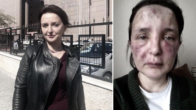 Yüzüne dolgu yaptığı kadının hayatını karartan sahte doktora 3 yıl 4 ay hapis