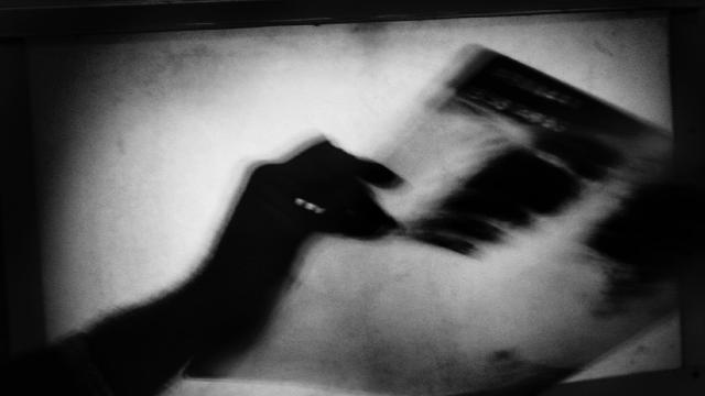 """DSÖden """"tüberküloz"""" açıklaması: Ölümler 10 yıl içinde ilk defa arttı"""