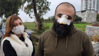 Samsun'da pitbullun saldırdığı adamın burnu koptu