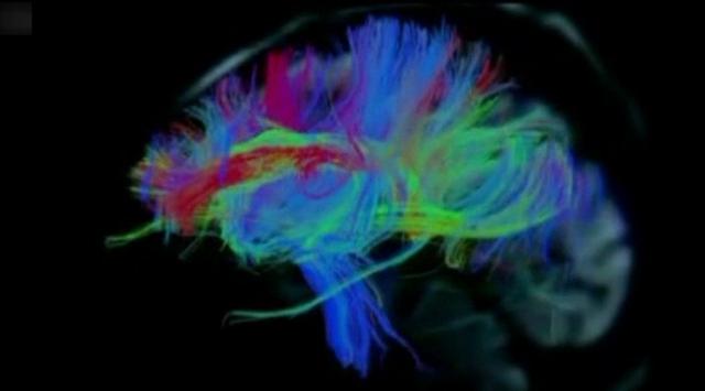 İnsan beyninden renkli görüntüler