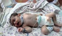 10 Günlük Bebeğe Stent Takıldı