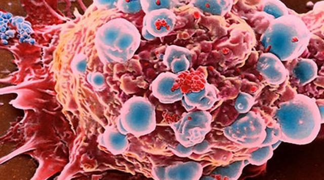 Kadınlara ücretsiz HPV taraması yapılacak