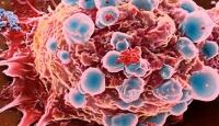 Kanserden Korunmak İçin Yediklerinize Dikkat