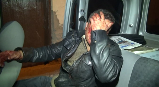 Taciz iddiasıyla dövülüp bıçaklandı