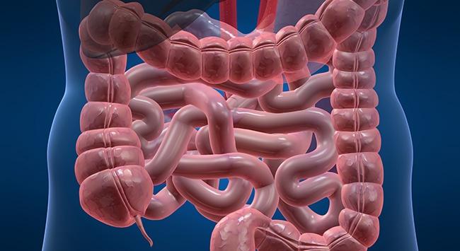 Kalın bağırsak kanseri hızla artıyor