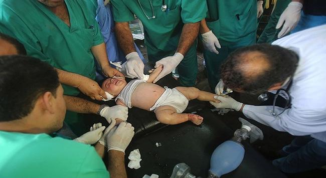 Gazzede görevli doktorların ruh sağlığı bozuldu
