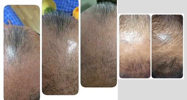 Saç dökülmesine karşı çözüm