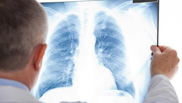 Bulaşıcı olmayan hastalıklar milyonlarca can aldı