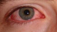 Kırmızı Göze Dikkat !