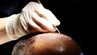 Saç dökülmesi erkeklerin psikolojini bozuyor