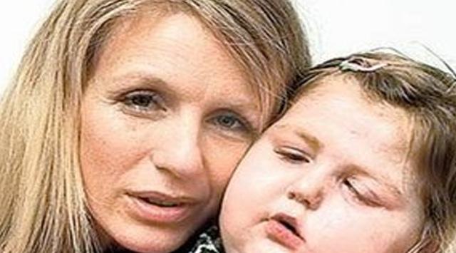 Annenin Silikonu Kızını Kanser Etti