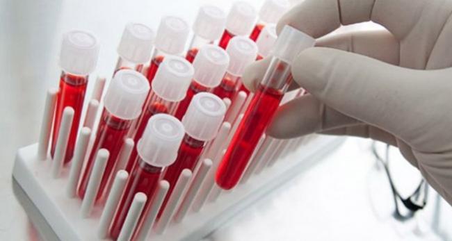 Kan kanseri genetik özelliklere göre farklılık gösteriyor