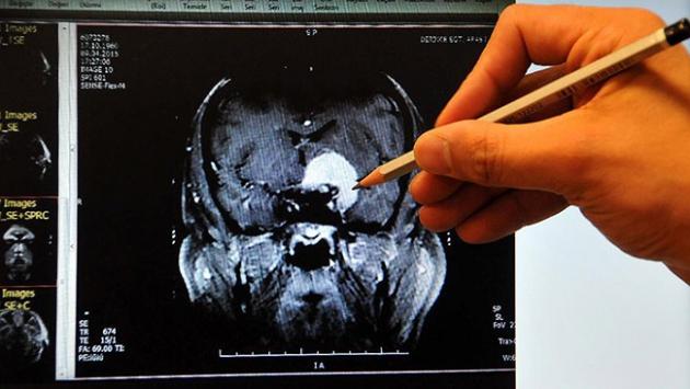 Türkiye beyin cerrahisinde AB'nin çok üzerinde