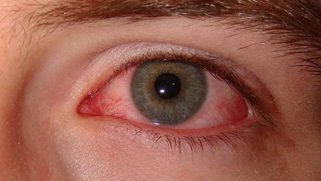 Kırmızı göze dikkat!