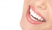 Dişlerde renk değişimine dikkat!