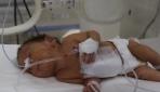 Siyam ikizi bebekler ameliyatla ayrıldı