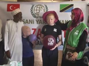 Afrikanın talihsiz albinoları