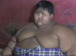 Endonezyada 192 kilogram çocuk tedaviye alındı