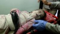İkizini ve annesini bombardımanda kaybetti