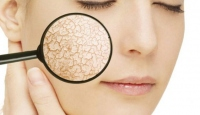 Soğuk havalarda cildimizi nasıl korumalıyız?