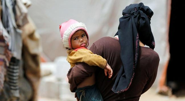 Yemende savaş kurbanı çocuklar