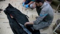 Dumada saldırılar sonucu 3 çocuk hayatını kaybetti