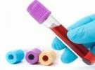 Hepatit B yakında tarihe karışabilir