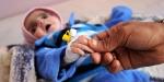Yemendeki çocuk ölümleri son bir yılda iki katına çıktı