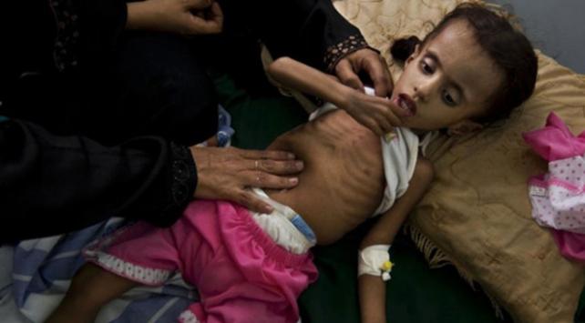 BMden Yemen için 1,1 milyar dolarlık yardım sözü