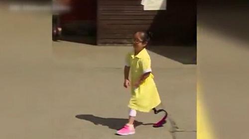 Pembe protezle okulda ilk gün