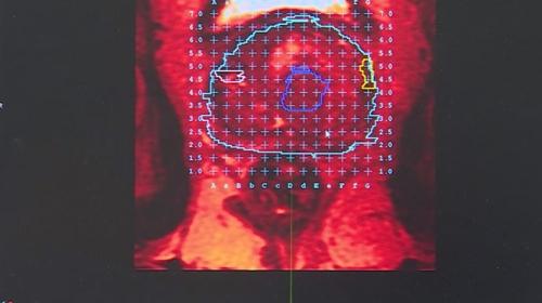 Prostat kanserinde yeni teşhis yöntemi