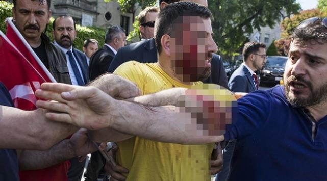 ABDde PKK yandaşlarının saldırdığı Türk vatandaşı konuştu