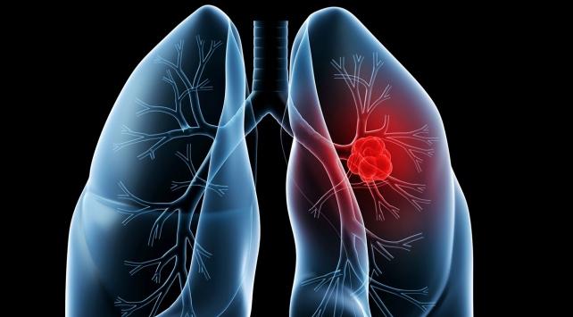 Akciğer tansiyonunu diğer hastalıklarla karıştırmayın