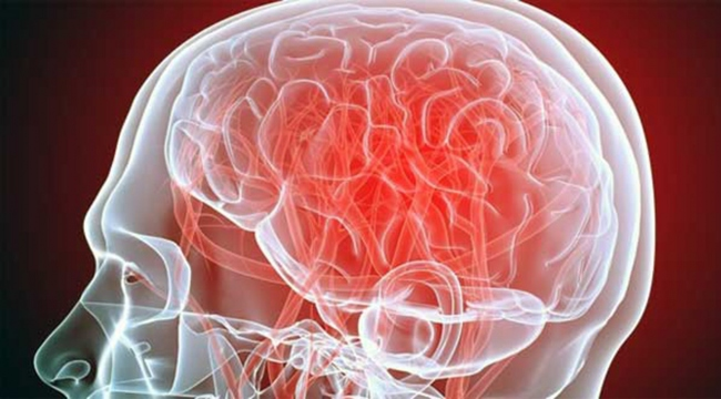 Alzheimer erken teşhis edilecek