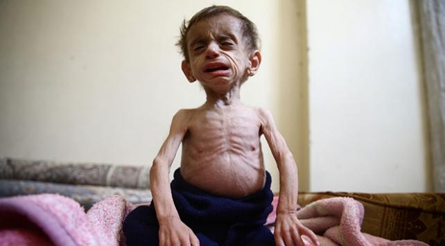 Doğu Guta açlığın ve hastalığın pençesinde