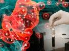 Yapay zeka kanser tedavisine ışık tutuyor