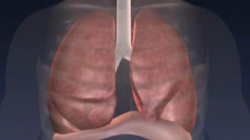 KOAH hastalarına nefes aldıracak yöntem