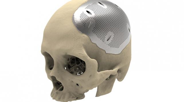 3 boyutlu yazıcıda protezler üretilecek
