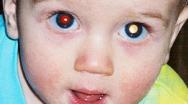 """Fotoğrafta """"Kırmızı Göz"""" Neyin Göstergesi"""