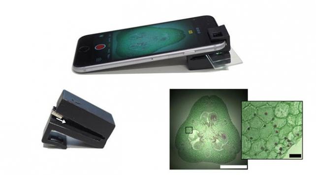 Optik eklenti cep telefonunu mikroskoba dönüştürüyor