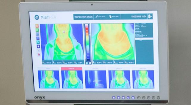 Kanserde kızılötesi ile radyasyonsuz teşhis dönemi