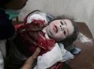 Suriye'de rejim ablukasındaki Doğu Guta'ya ölüm yağıyor