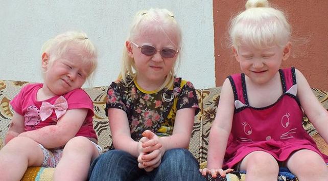 Dünya Albinizm Farkındalık Gününde beyaz meleklerin sorunları anlatılacak