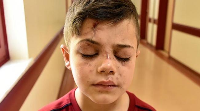 Suriyeli küçük Abdulmuine Gaziantepte umut ışığı