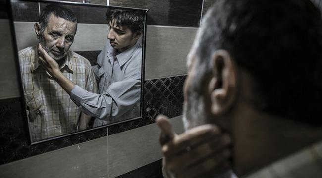 Bombardıman sonrası görme kaybı yaşayan Suriyeliler yardım bekliyor