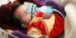 Yemende kolera can almaya devam ediyor